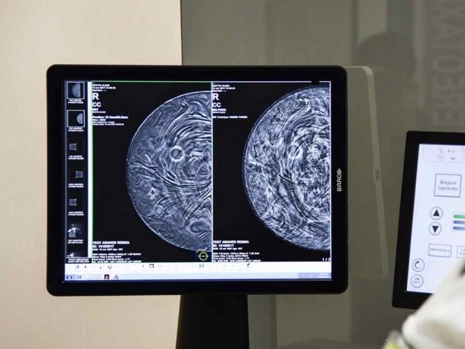 El cáncer de mama se investiga en México